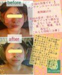 美容鍼症例4