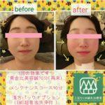美容鍼症例3