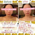 美容鍼症例5