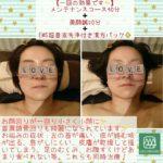 美容鍼症例1